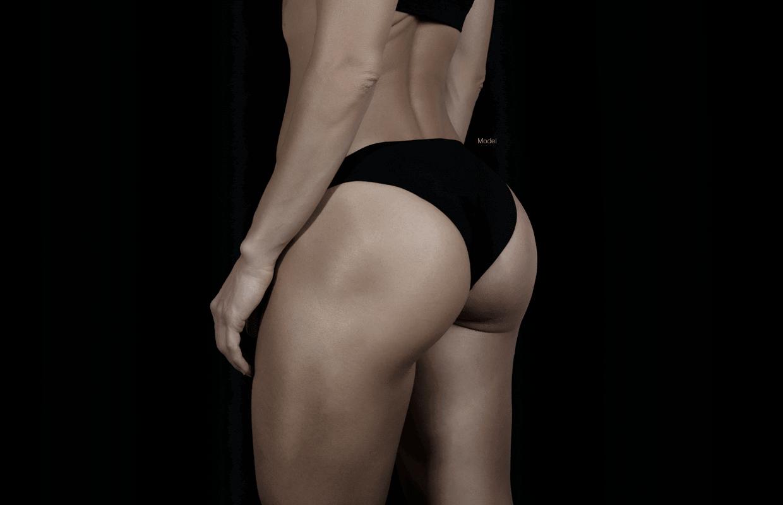 Butt Implants in Miami - Dr  Constantino Mendieta