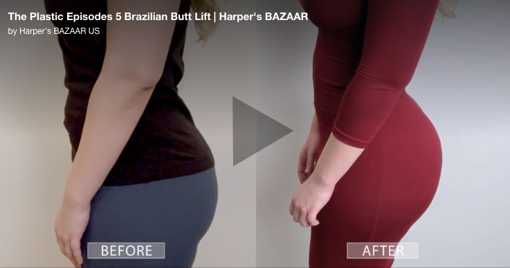 Brazilian Butt Lift in Miami - Dr  Constantino Mendieta