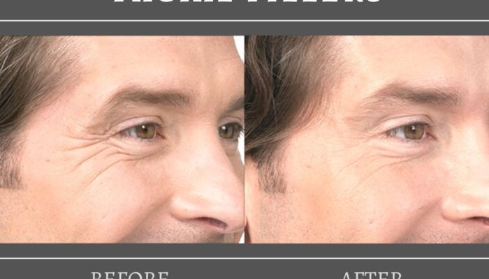 "This before-and-after image set shows the effects of facial fillers in reducing ""crows feet"" wrinkles around the eyes."
