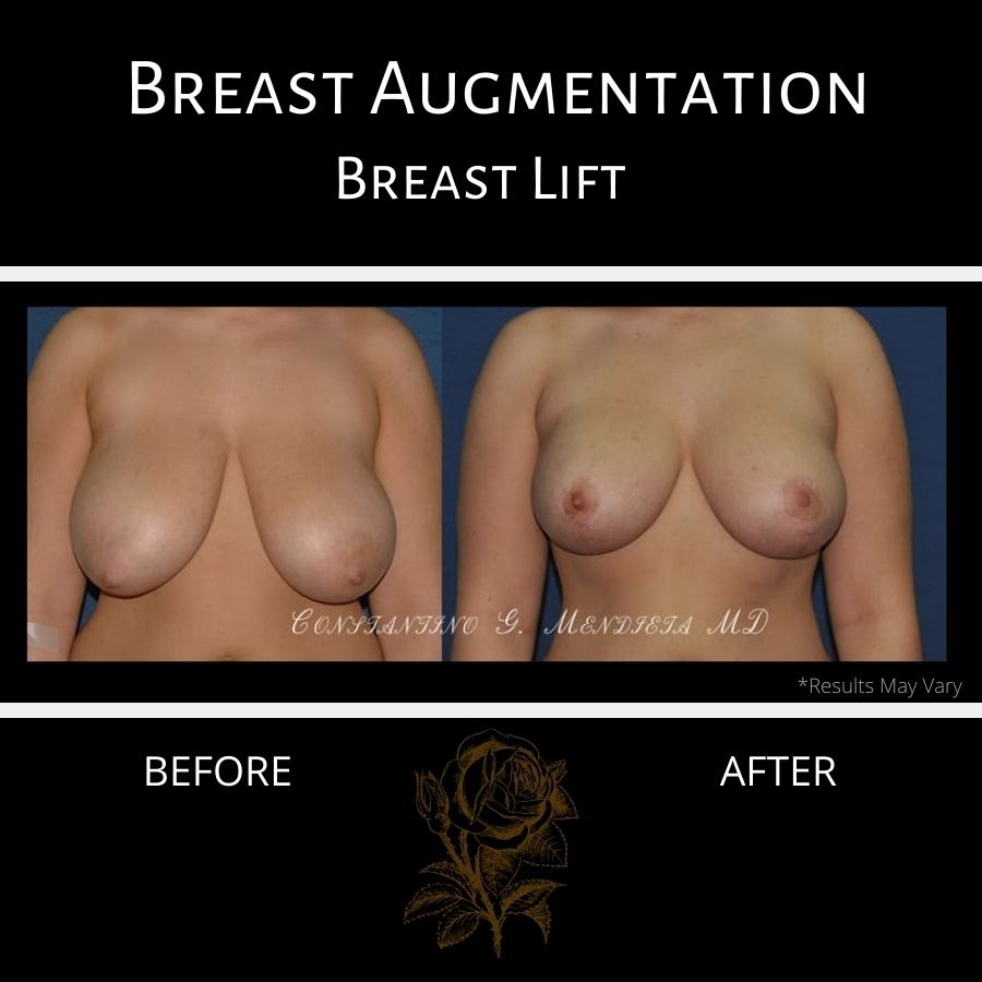 breast lift patient 13