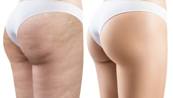 Cellulite transformation before and after.