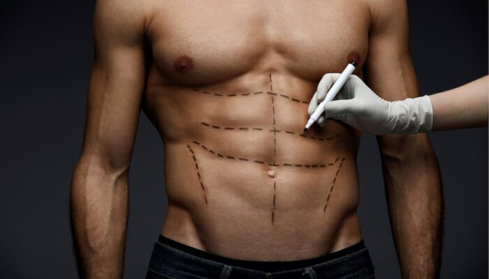 Young Man's Fit Torso With Surgical Lines On His Body