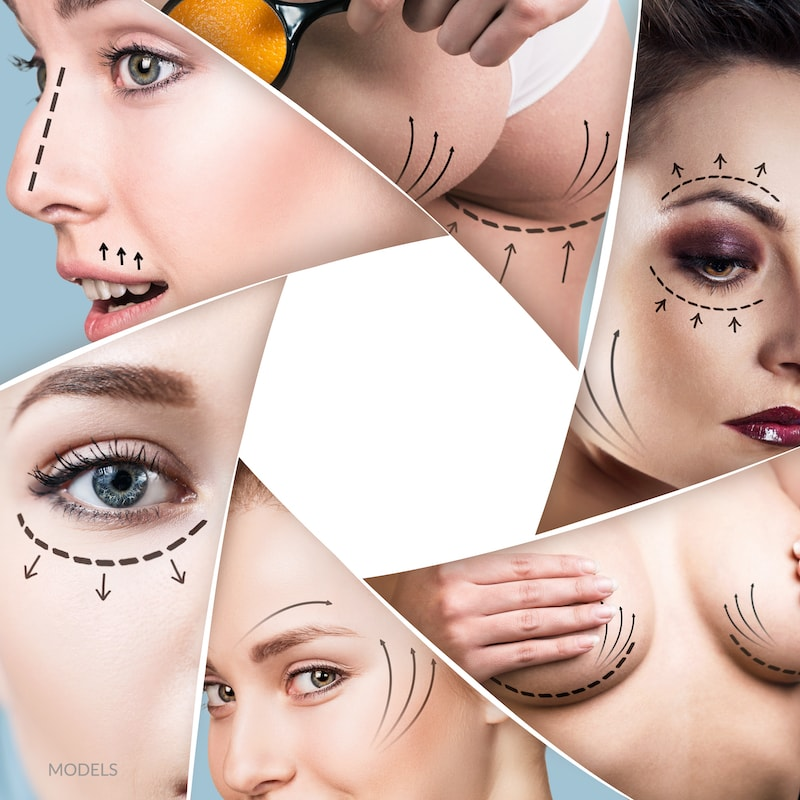 Collage of women with arrows drawn on face and body for cosmetic enhancements.