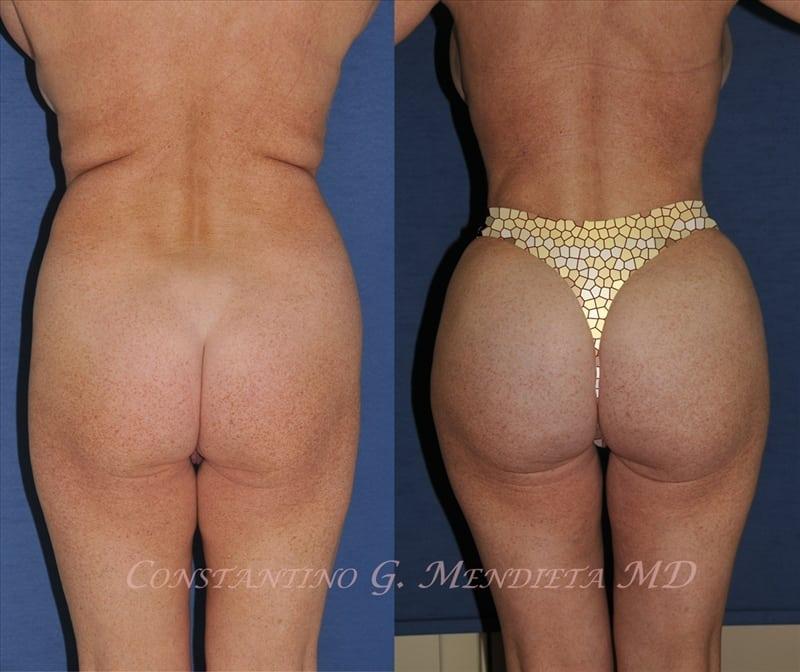 Brazilian butt lift reviews, cost, before after