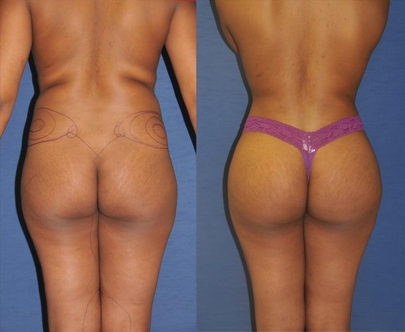 Best Brazilian Butt Lift Surgeons In India